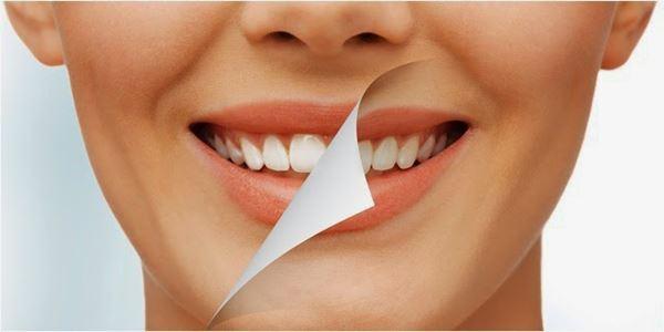 Tips Aman Memutihkan Gigi Yang Kuning