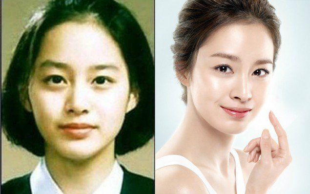 natural kimtaehee