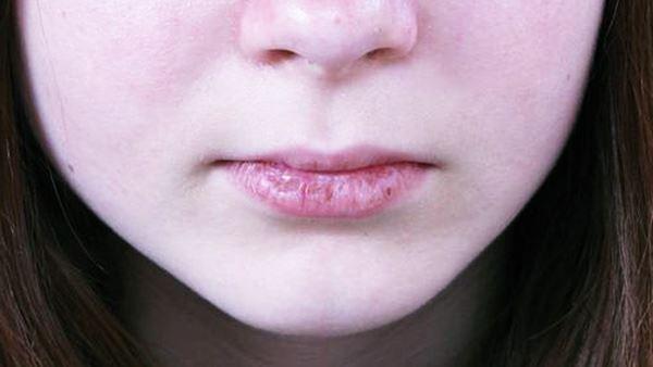 Kebiasaan yang Dapat Membuat Bibir Jadi Pecah - Pecah