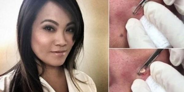 Dr. Sandra Lee, Dokter Pemencet Jerawat yang Hebohkan Youtube