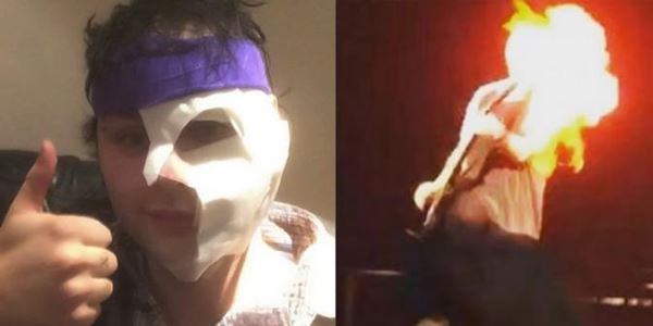 Wajah Michael Clifford Diperban usai Terbakar di Atas Panggung 2