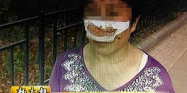 Telponnya Tak diangkat, Seorang Suami Tega Menggigit Hidung Istrinya!