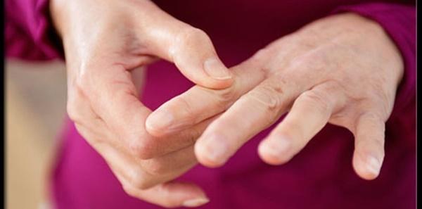 3 Hal yang Bisa Menjadi Penyebab Penyakit Lupus